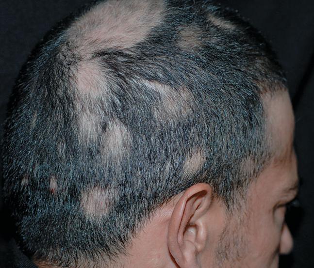 Кръгов косопад