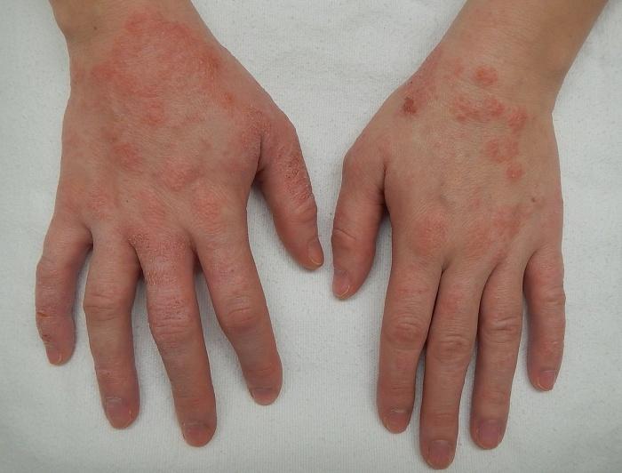 Ковид дерматит на ръцете