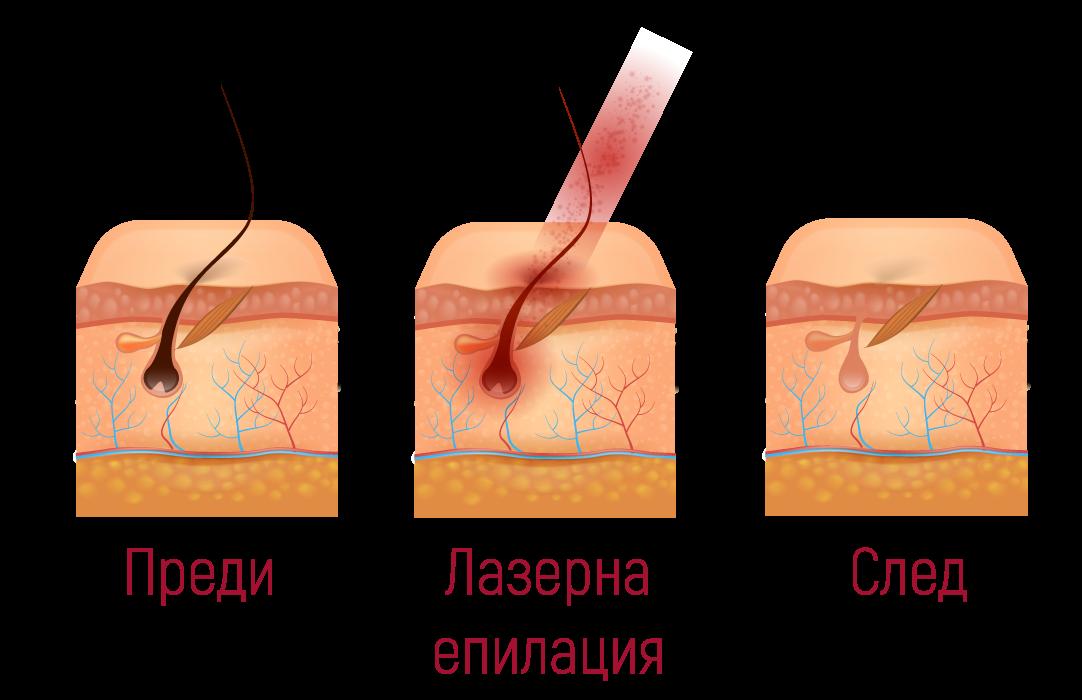 Преди и след лазерна епилация