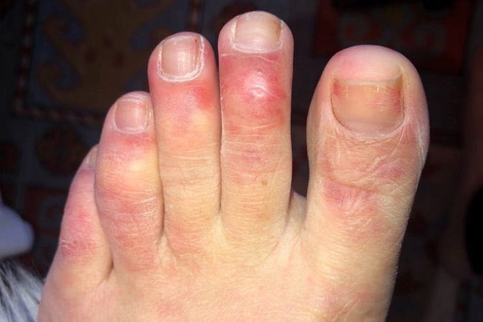 Covid пръсти