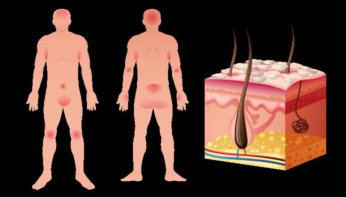 Псориазис