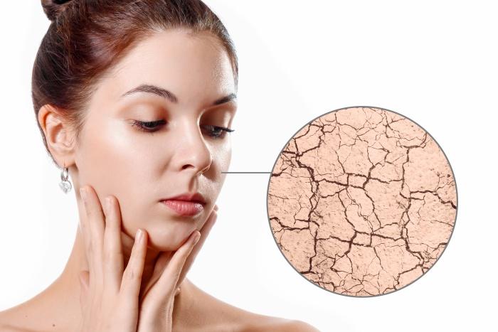 Симптоми при суха кожа